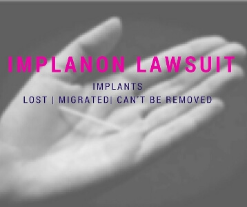 Implanon Lawsuit- May become lost, migrated and can't be removed