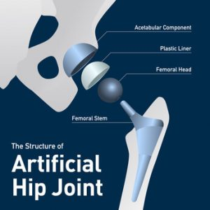 hip-replacement-lawsuit-stryker