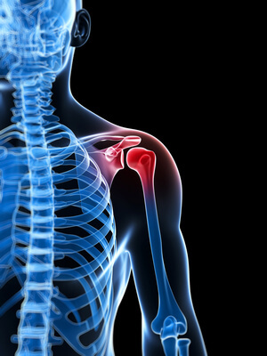 Shoulder-rotator-cuff-pain
